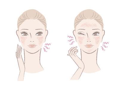 肌のヒリつきを感じている女性のイラスト